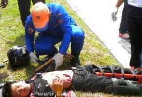 Kemalangan Ngeri  Pelajar Kolej Komuniti Berlubang  Perut Selepas Kemalangan ( Gambar )