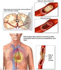 Cara Cepat Mengencerkan Darah Kental