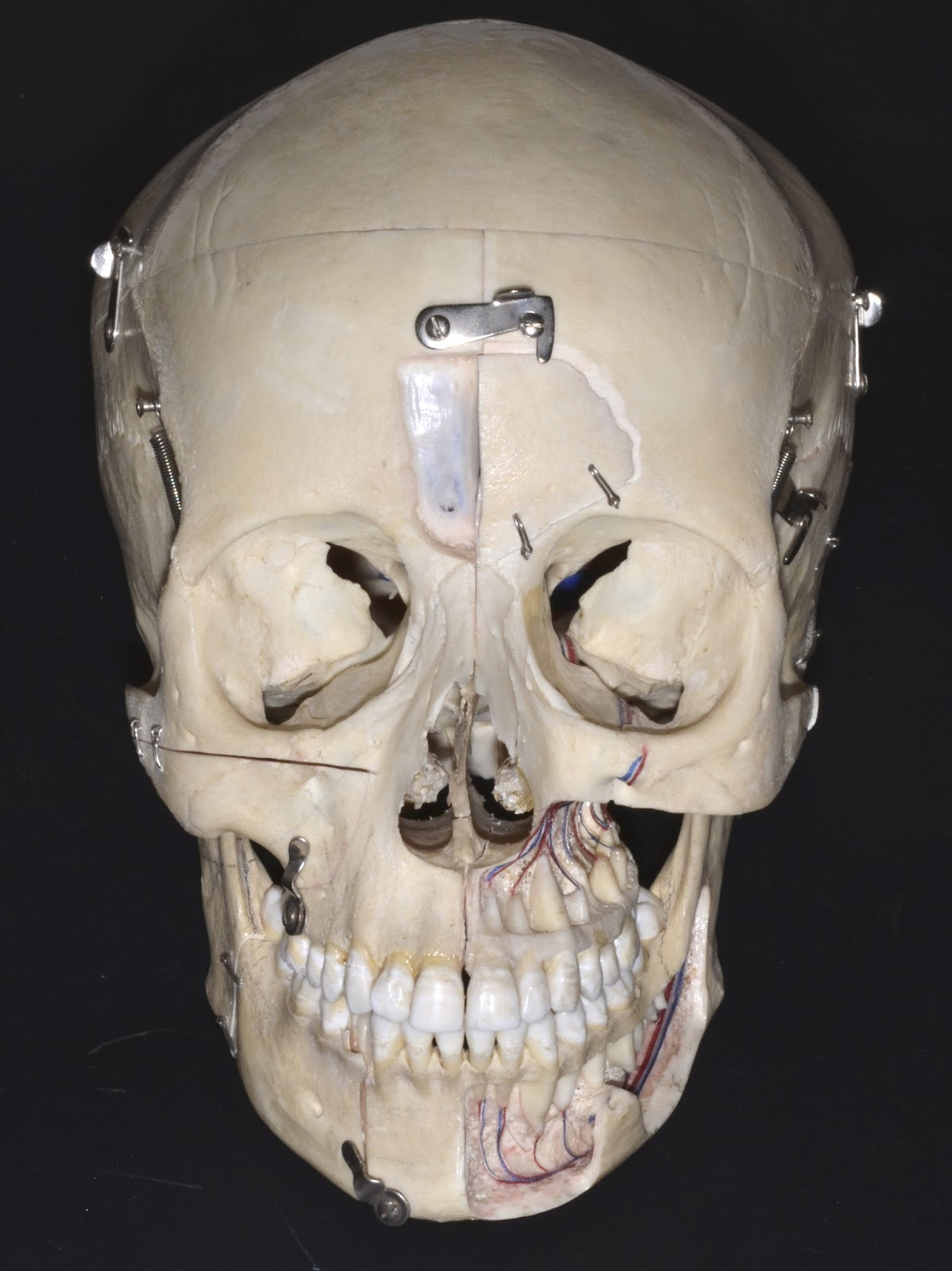 Cranio Maxillo Facial Surgery. Cirugía Cráneo Maxilofacial. Head and ...