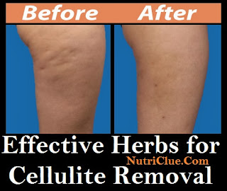 Effective Herbs for Cellulite Removal