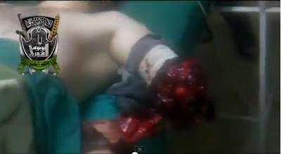 Al-Quran Dan Mujahidin Syria Tidak Dapat Di pisahkan, Tatkala Tangan Hancur Di bom Bacaan Al-Quran Tidak Pernah Lekang Di Bibir