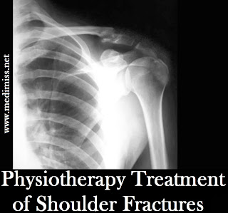 Physiotherapy Treatment of Shoulder Fractures