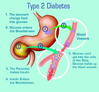 Komplikasi Diabetes Tipe 2