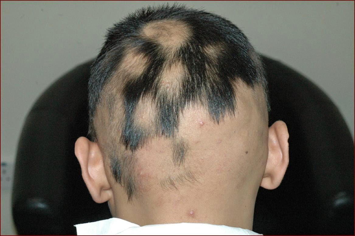 Las máscaras para el crecimiento de los cabello y de la sección de los cabello