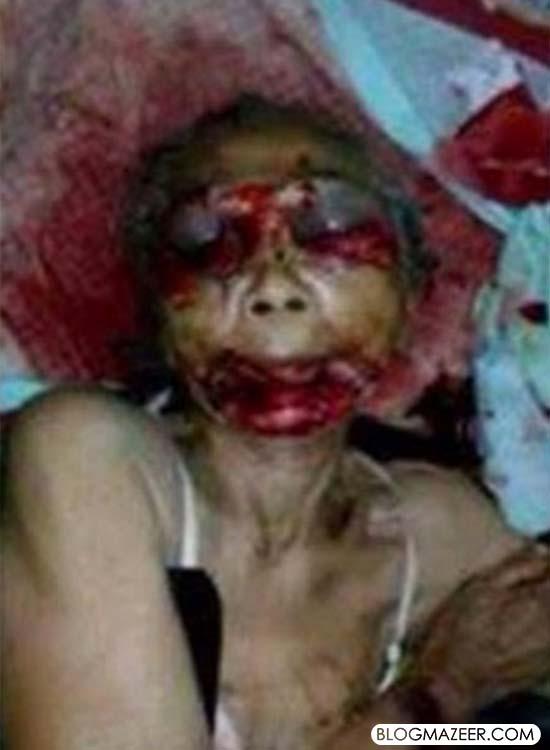 Ibu Malang Ini Dipotong Lidah dan Matanya Dicungkil Oleh Anaknya