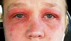 masalah eczema, zarraz paramedical, rawatan eczema kulit, bagaiman eczema terjadi, rawatan terbaik untuk masalah eczema, kulit iritasi, kulit gatal eczema