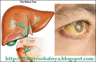 obat herbal liver alami dari tradisional pengobatan