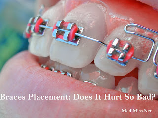 Braces Placement: Does It Hurt So Bad?