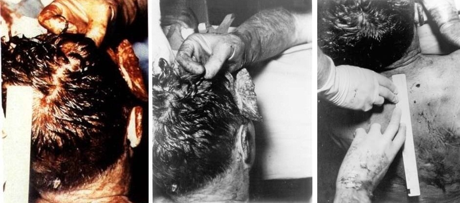 JFK-Autopsy-Photos-BOH-Composite.jpg