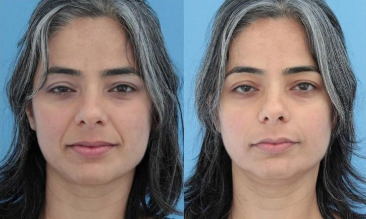 Collagen Deficiency And The Erosion Of Suppleness In Skin Happen To All People At Some Time Jowls Wilt Cheek Gets Flabby As A Result