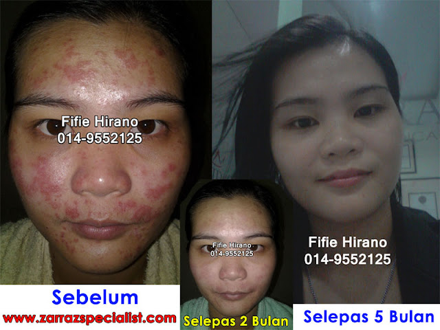 fifie, testimoni produk zarraz paramedical, 0149552125, rawatan masalah eczema, fifie testimoni zarraz