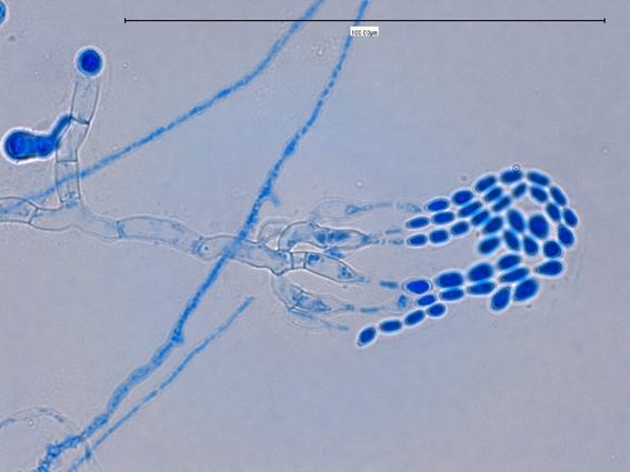 Septate Hyphae With Arthroconidia Septate Hyphae With