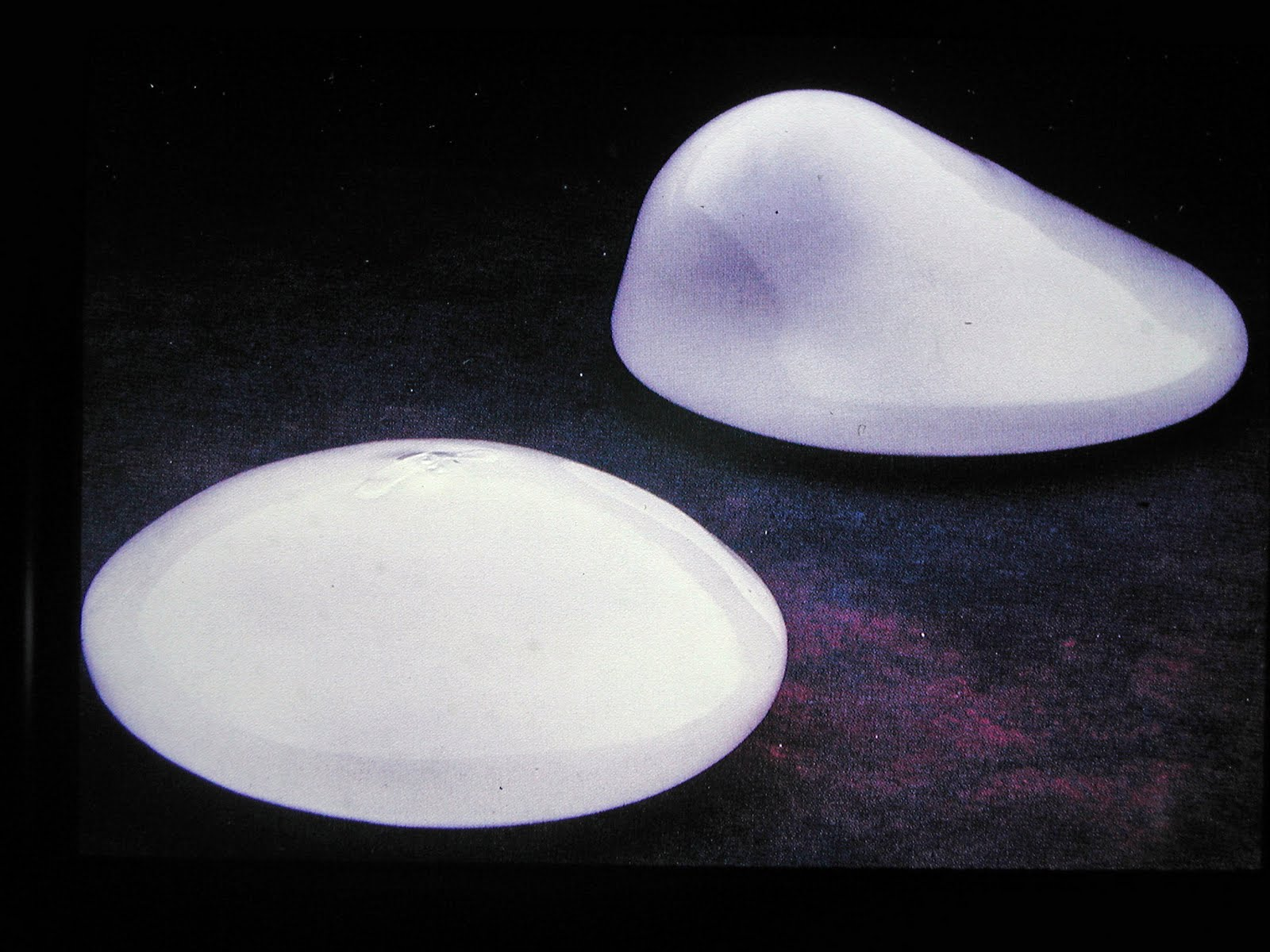 http://3.bp.blogspot.com/-p2HmU1nVhIY/TlUohSjgMtI/AAAAAAAADkw/zU0DaIkvx5Y/s1600/breast-implant-profiles-indianapolis-dr-barry-eppley1.jpg