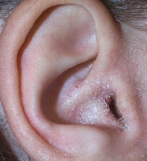 kulak mantarının belirtileri