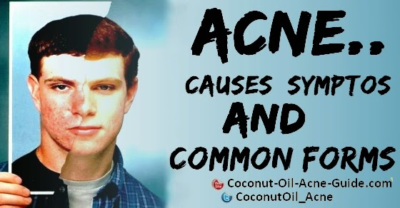 Acne Causes, Symptos and Common forms
