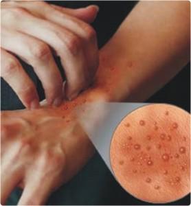 cotoh alergi