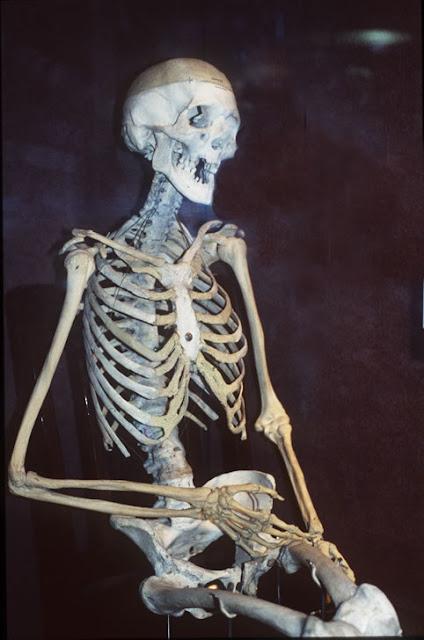 tengkorak@ skeleton