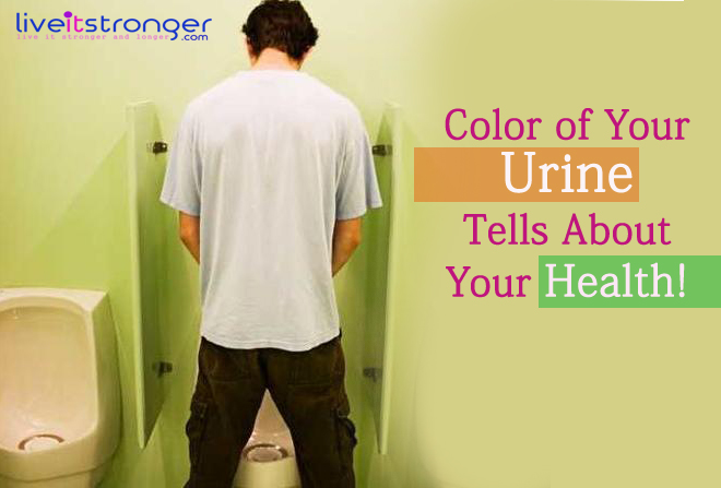 Urine, health, urology, yellow urine