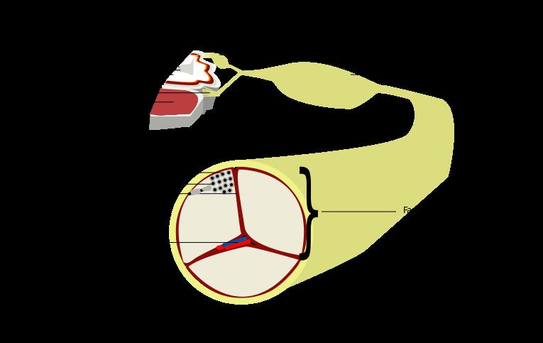 All About Peripheral Neuropathy Peripheral Neuropathy