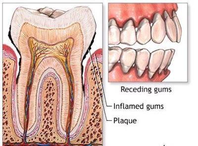 Cara Menghilangkan Karang Gigi Dengan Cepat