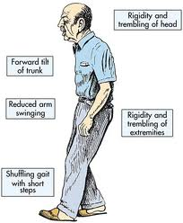 Boala Parkinson (Paralizia agitanta)