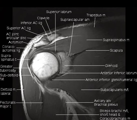 Shoulder anatomy radiology