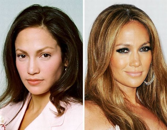 Hbt Photos Celebrities Before And After Plastic Surgery