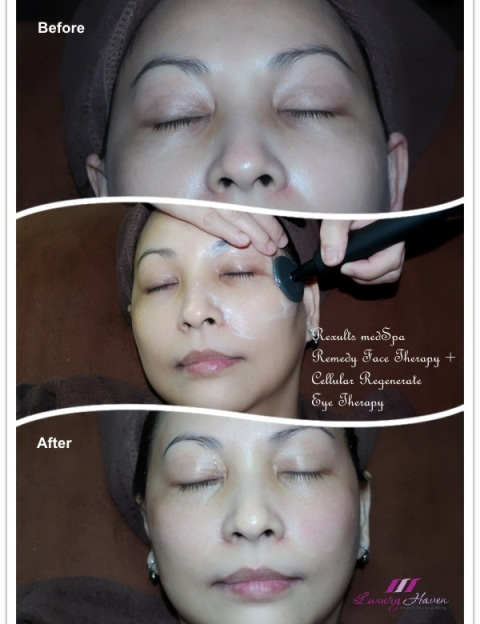 celebrity beauty blogger reviews rexults medspa eye therapy