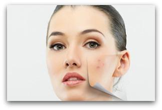 Dime en que parte del rostro tienes acné y te diré la causa