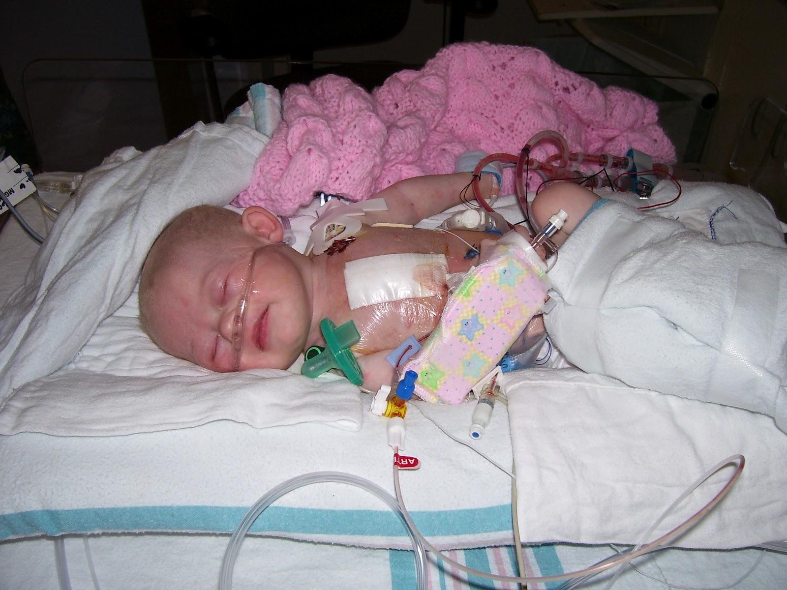 Врожденные пороки сердца детей фото