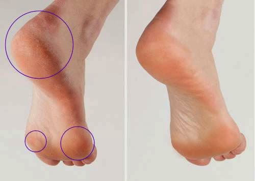 Learn how to remove corns effectively calluses on fingers feet deeply cleanse the skin