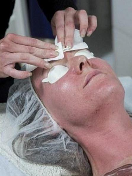 Saksikan Kesan Suntikan Botox yang Mengujakan