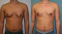 Ginecomastia redução da mama masculina -imagem antes e depois
