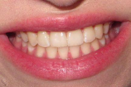 Say Braces!: Before and After Braces—Braces Off, Underbite Fixed and ...