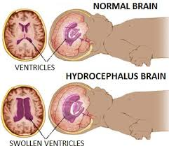 NCP Hydrocephalus : Acute Pain and Ineffective Cerebral Tissue Perfusion