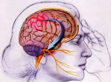migraine cause