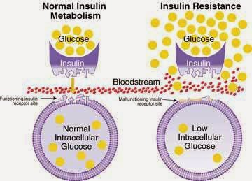insulin resistance diet plan