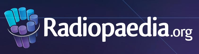 Radiopaedia.