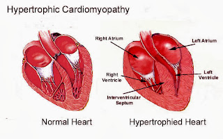 Cardiomyopathy Causes, Symptoms, Diagnosis, Treatment
