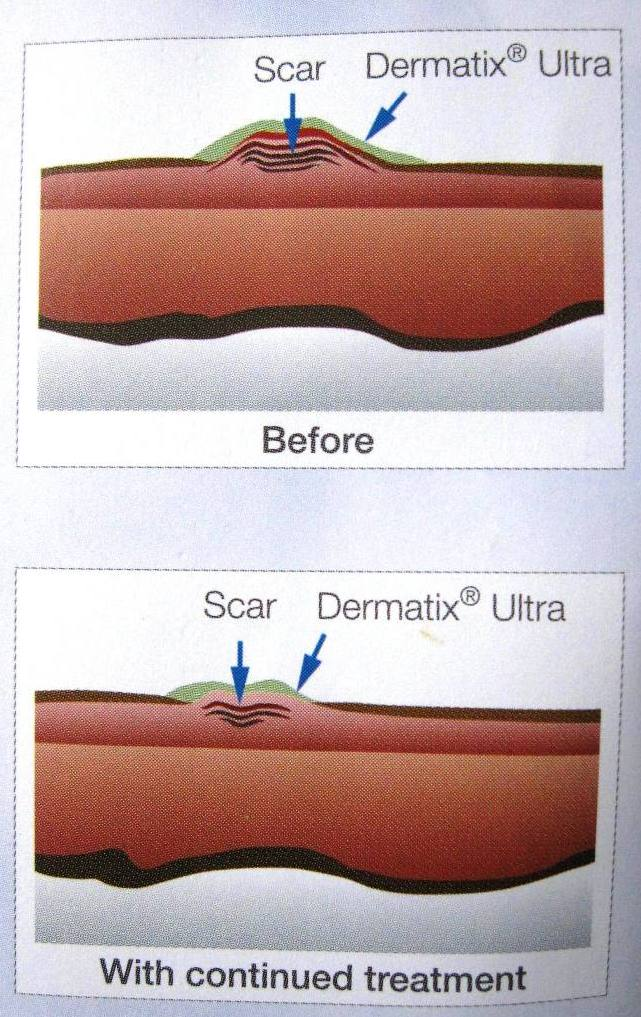 Faq Satu Apa Perbedaan Dermatix Ultra