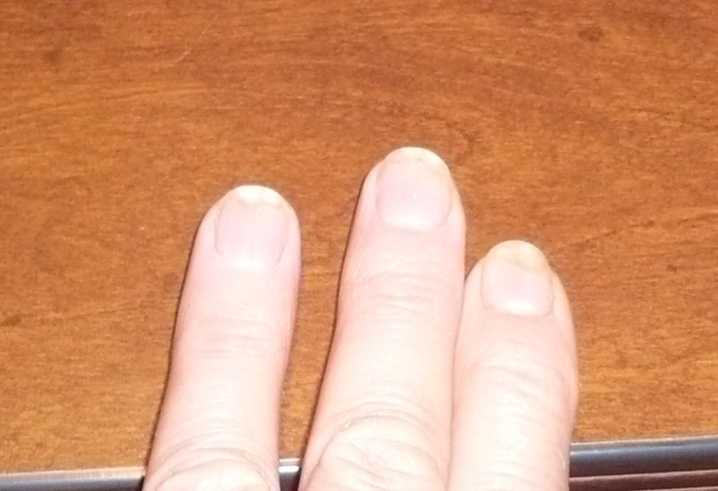 TIPS by ASK Cosmetics Blog: Onycholysis: When nails detach from the ...