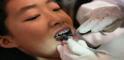 harga pemasangan behel di dokter gigi