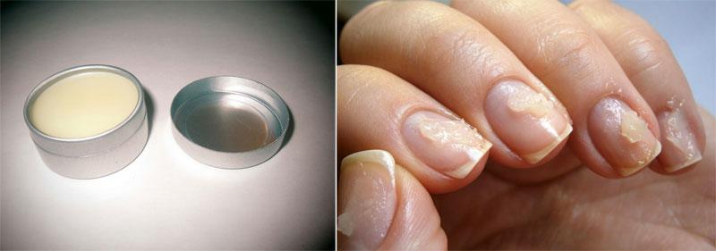 Запечатывание ногтей домашних условиях