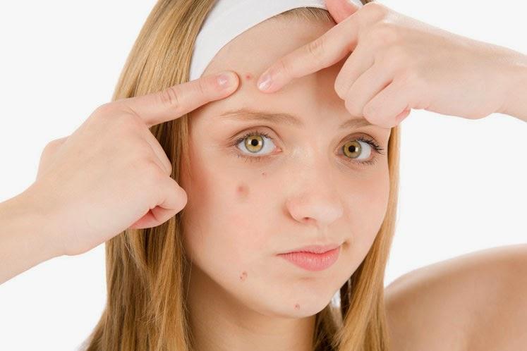 Acne-Come-Eliminare-Cicatrici-Rimedi-Naturali