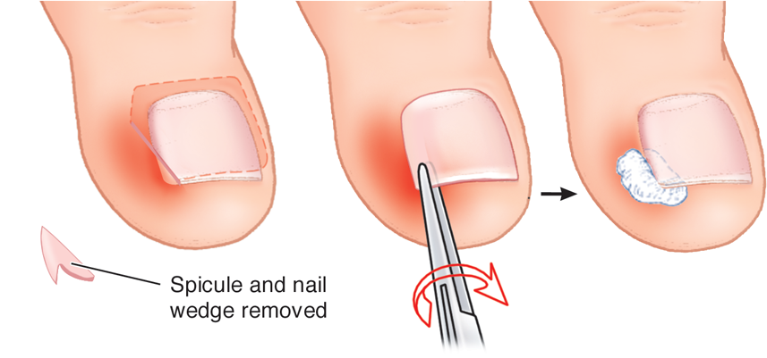 Here \' s How To Get Rid Of Ingrown Toenail Without Surgery ~ Google+
