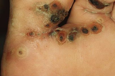 Parasitic Bug And Hundreds of Eggs Bursts Out of British Student's Foot