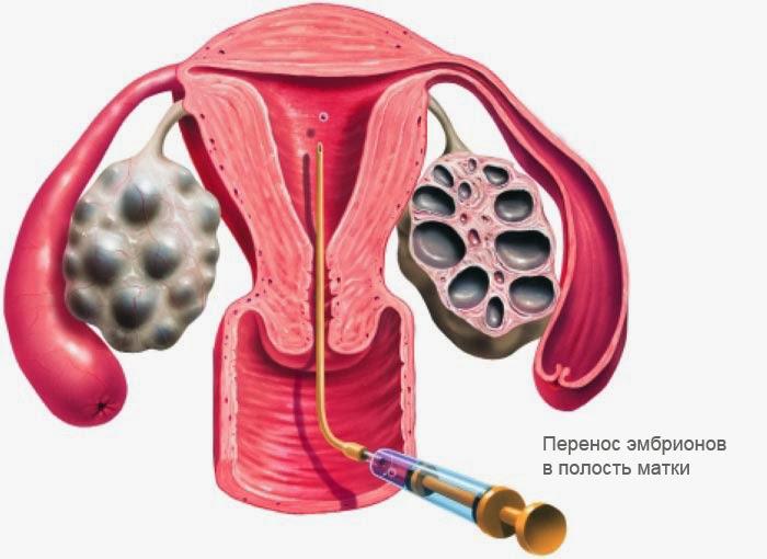 декапептил перед пункцией влияет на имплантацию девушка