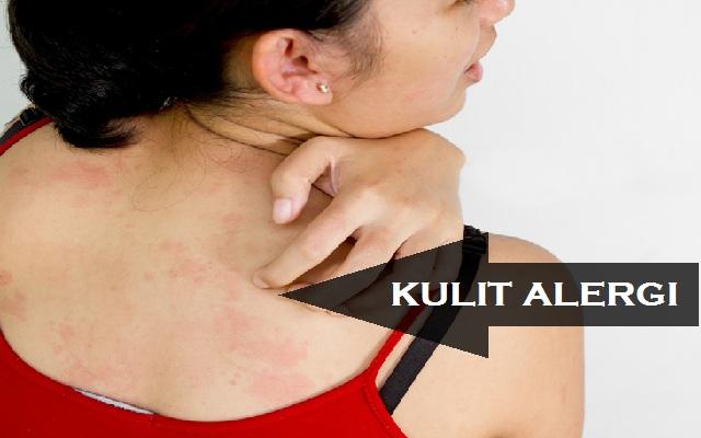 ini Solusi Bagi Wanita Yang Memiliki Kulit Sensitif dan Alergi