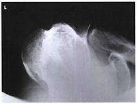 Shoulder radiograph