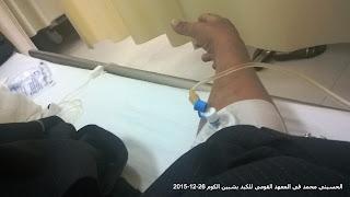 HCV, التأمين الصحى, الحسينى محمد, الخوجة,التعليم,المعلمين,فيروس سى
